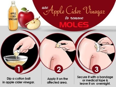 Use Apple Cider Vinegar to Remove Moles, you will definitely get the amazing results better in a week.
