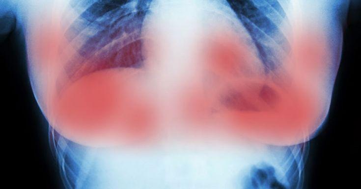 Científicos de Ámsterdam destruyen tumores de cáncer de mama sin químicos en sólo 11 días | AldeaViral