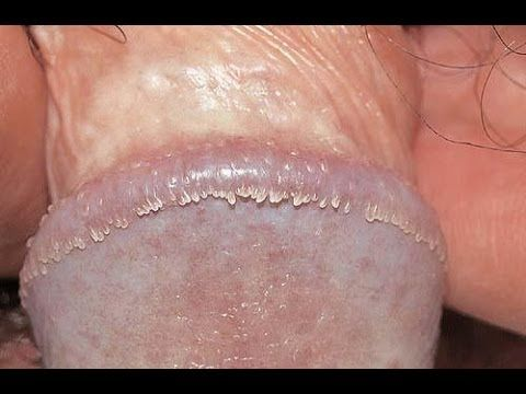 This how common is pearly penile papules