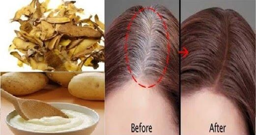 Home Remedies: One Ingredient to Get Rid Of Gray Hair Permanently Will Certainly Amazed You! - Latest Viral Spot