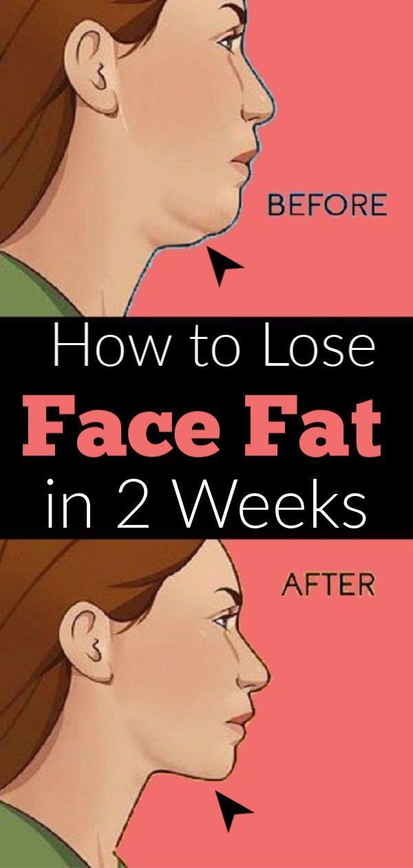 Pin On Weight Loss Without Exercise