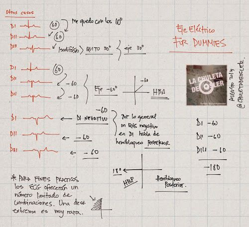 La Chuleta de Osler: Cardiología: Calculando el eje cardiaco, para dummies.
