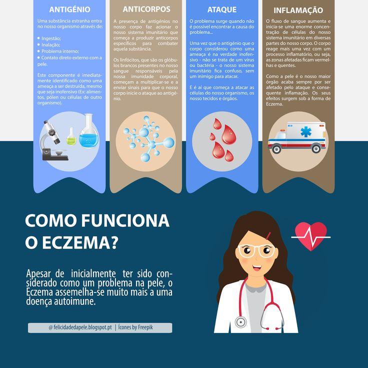 O ECZEMA NÃO É UMA DOENÇA DE PELE! Tags: Eczema, Doença, Atopia, Saúde, Pele, Sistema imunitário
