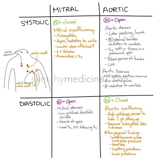systolic murmurs | Systolic vs diastolic heart murmurs | Sketchy Medicine Cardiac murmurs indicate turbulent flow thru a heart valve, which occurs when either a valve fails to properly close (also known as backflow or regurgitation), or outflow from the valve is obstructed (also known as stenosis) open.