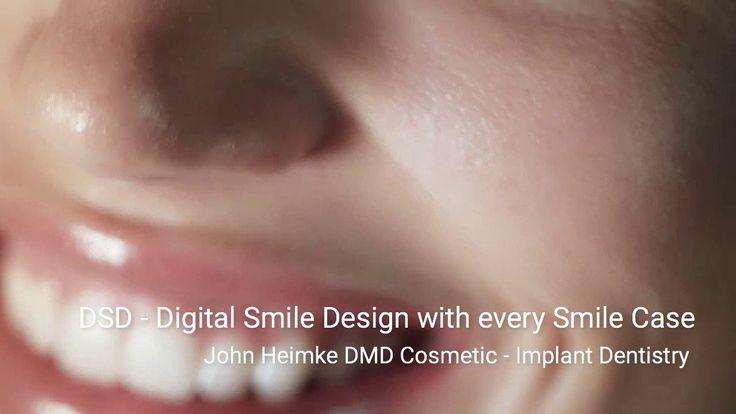 Cosmetic Dentistry   Dental Implants   DSD-DigitalSmile Design Cleveland...