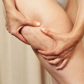Natural Home Cures for Cellulite
