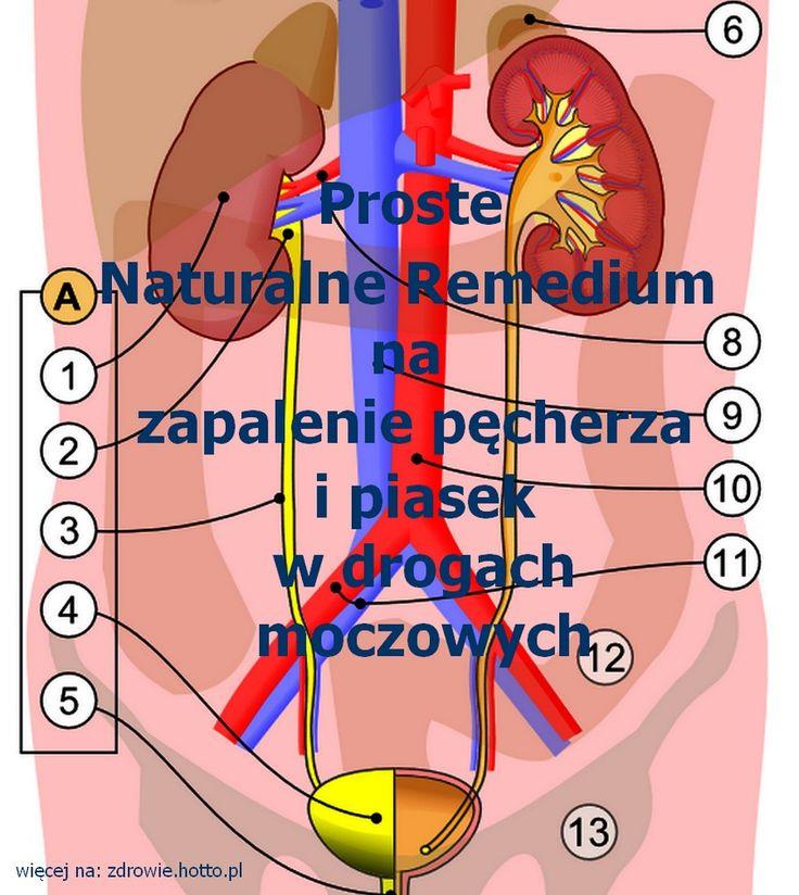 Na zapalenie pęcherza moczowego i piasek w drogach moczowych. Naturalne Remedium
