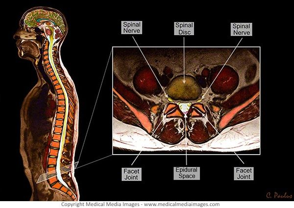 1000+ images about Spine Anatomy shown on Color X-Ray, CT ...