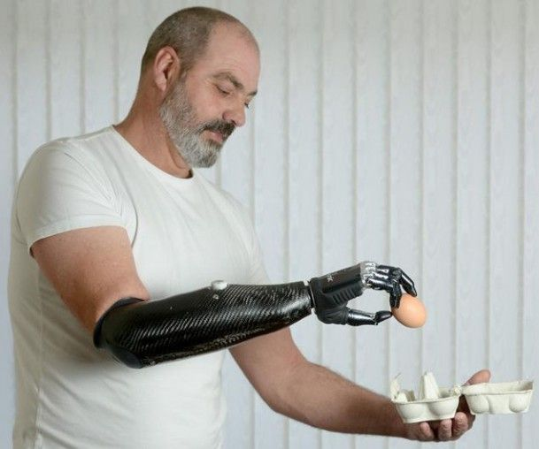 ...Thanks to RSLSteepe and its bebionic3 myoelectric hand, Ackland can now tie his shoes, crack eggs, and even use a keyboard and mouse. It's all controlled by the user's upper arm, where muscle flexes can trigger the limb...