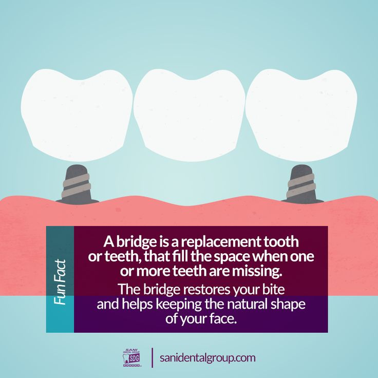Did you know the imbalance caused by missing teeth can lead to gum disease and temporomandibular joint disorders? A dental bridge is the perfect solution to avoid future problems. At Sani Dental Group you can get high-quality dental bridges for affordable prices!