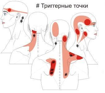 Триггерные точки, работа с миофасциальным напряжением | Medrich.ru