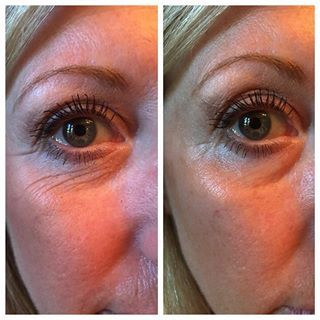 Crows feet: gone. With the genius ultra from arbonne.