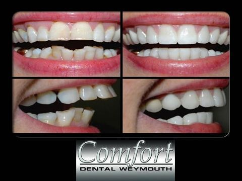 Root Canal Therapy in Weymouth, MA  Dentist, Emergency Dentist, Implant Dentistry, Cosmetic Dentistry, Fast Braces, Invisalign Dentist, Lumineer Veneers, Sleep Apnea Treatment, Root Canal Therapy, Cerec Same Day Crowns Dentist, Conscious Sedation