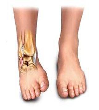 El esguince de tobillo representa el 38% de las lesiones del aparato locomotor. Dentro de las lesiones en baloncesto constituye el 40-50%, el 16-23% en las lesiones de fútbol y el 20% en las de atletismo. Si alguna vez sufres esta lesión, el tratamiento básico consiste en: ponerte hielo, reposar, comprimir para eliminar la inflamación y elevar para descargar la tensión del tobillo.