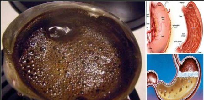 ¿Es Usted de los que Beben CAFÉ En las MAÑANAs con el Estómago VACÍO? ..LEA ESTE ARTICULO..   TUSALUDESVIDA