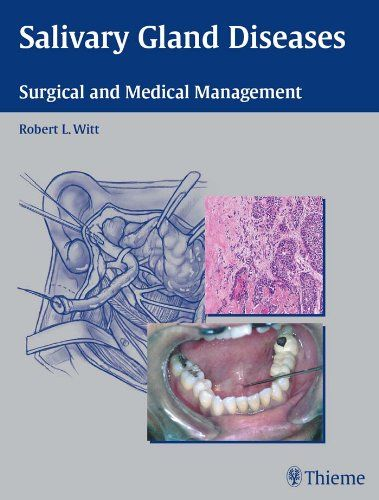 Salivary Gland Diseases: Surgical and Medical Management Pdf Download e-Book