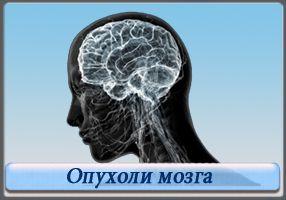 Опухоль головного мозга: симптомы должен знать каждый!
