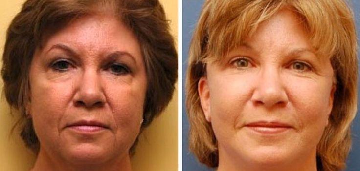Receiving A Seamless Organic Facelift Utilizing Facial Fitness Workouts