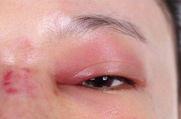 Аллергия на алкоголь - признаки и проявления, лечение врожденной или приобретенной