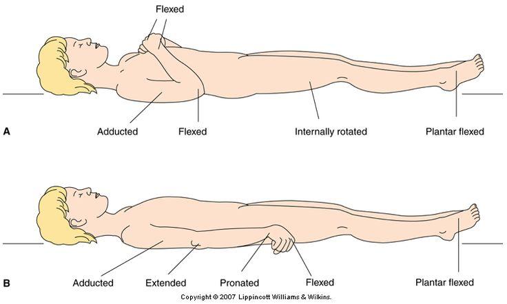 Massage therapy school yakima