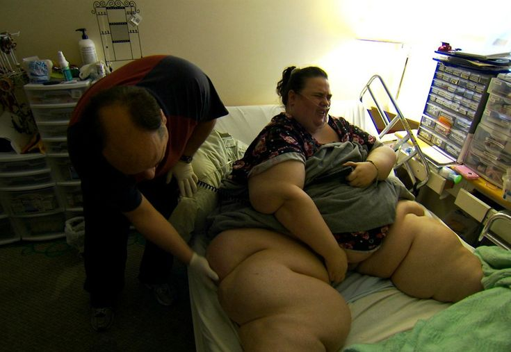 Exclusive clip: Olivia shows her excess skin on My 600-lb Life
