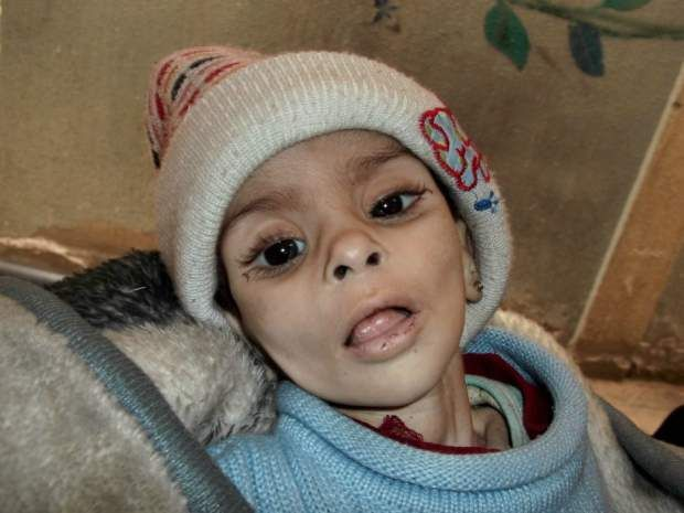 Starving child in Syria, 2016 Migrant crisis.  An inhumane time in the history of the world.