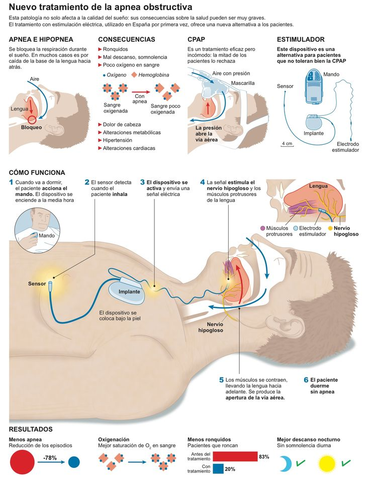 Best 440 Anatomía físio images on Pinterest | Anatomy of the neck ...