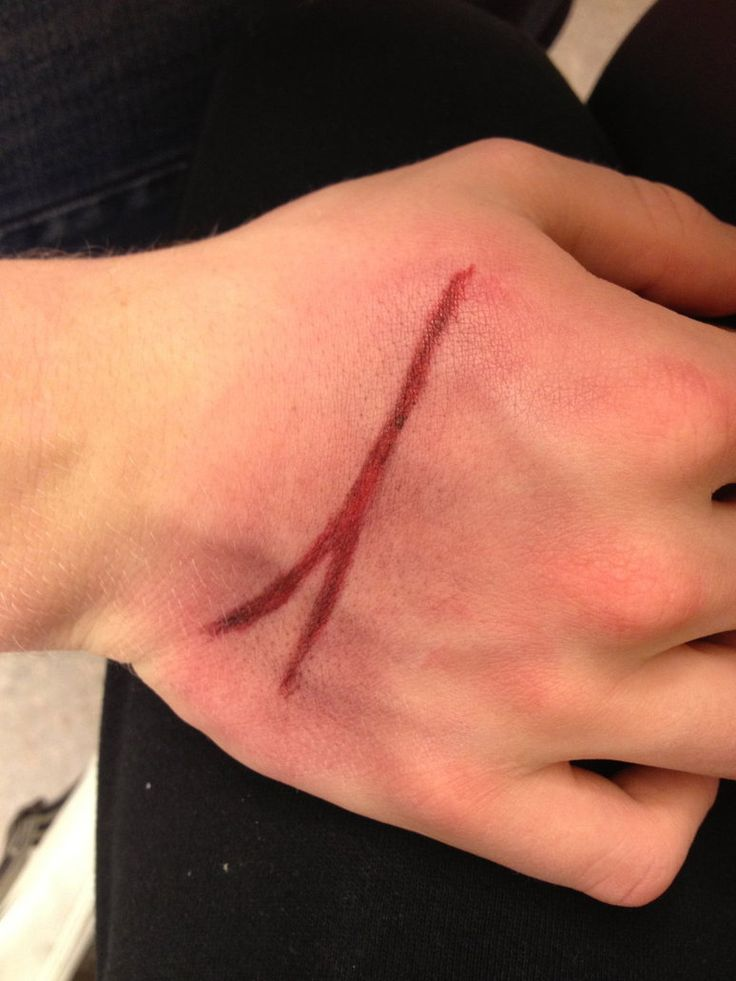 Doctor Who scar from ''The empty child'' by Meiwasama on deviantART