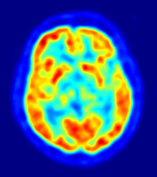 6 Mental Disorders and Their Locations in the Brain