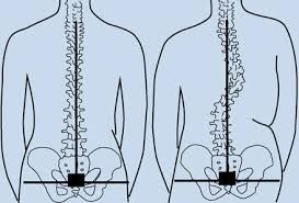 One of the most important things about body mechanics and posture is alignment. Alignment refers to how the head, shoulders, hips, knees, ankles,Spinal Alignment and Back Alignment. Before trying to correct your spinal alignment on your own, check with your doctor to make sure you don't have a more serious, underlying problem.For More information Visit: http://intermountainhealthandwellness.com