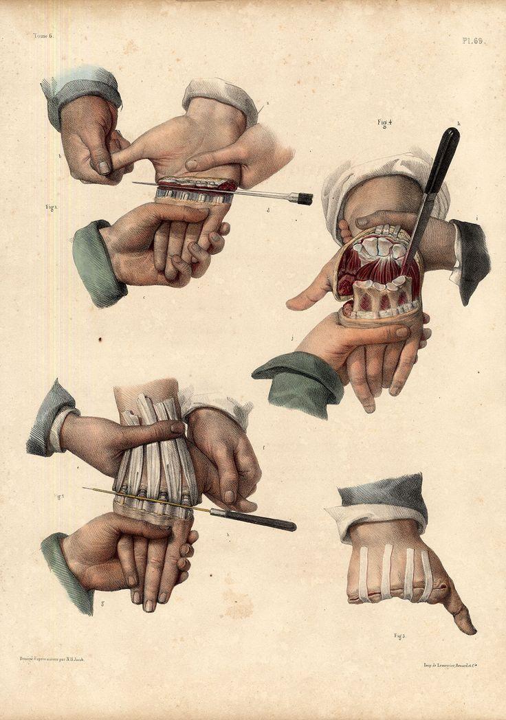 AMPUTATION-HAND-METACARPUS - Pl. 69 - [Traité complet de l'anatomie de l'homme comprenant la médecine opératoire (https://pinterest.com/pin/287386019941966857/), par le docteur Jean-Baptiste Marc Bourgery (https://pinterest.com/pin/287386019948321810). Illustration by Nicolas Henri Jacob, 1831-1845].