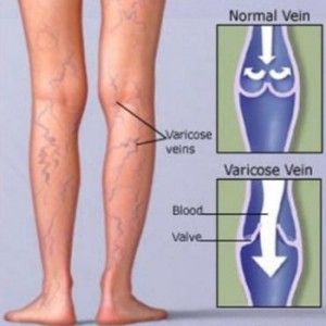 Preventing Varicose Veins To Get Worse During Pregnancy