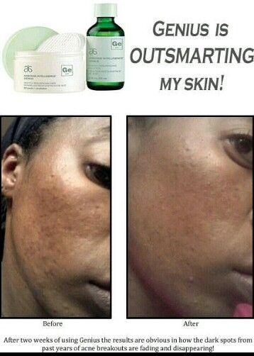 56 Best Images About Arbonne Product Results Before