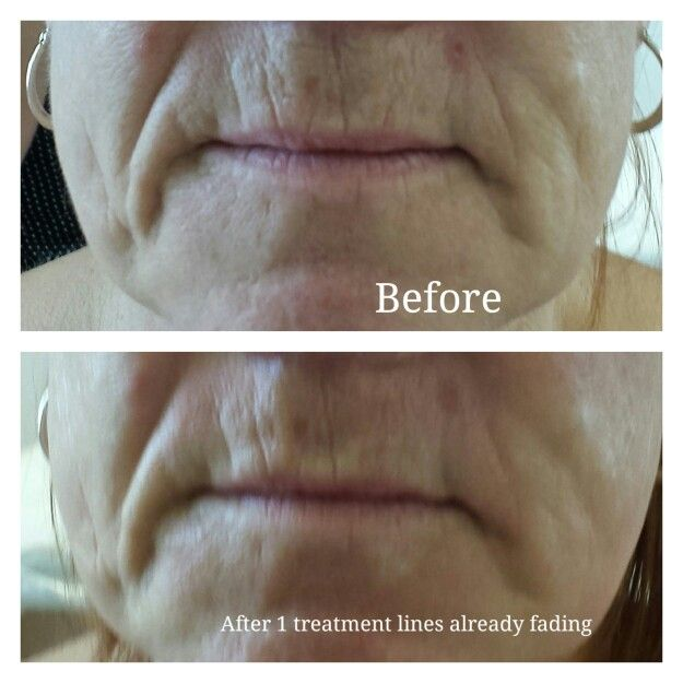Dermatude treatment after 1 treatment smoother lines!