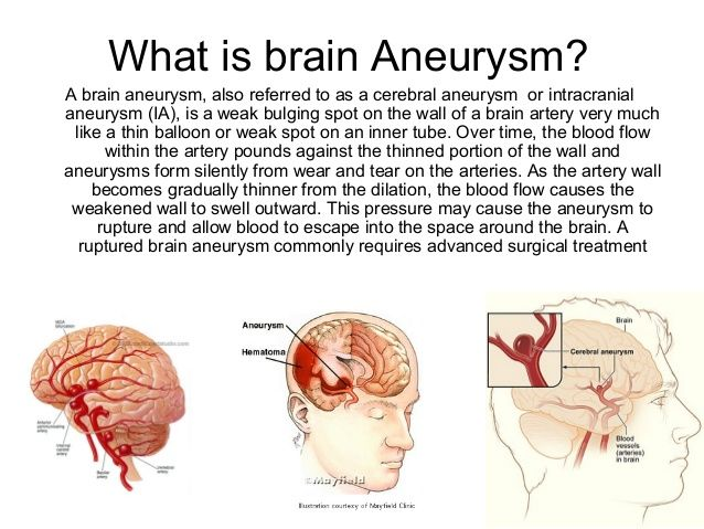 22 best images about brain aneurysm awareness on pinterest, Human Body