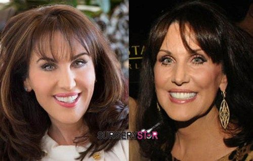 Marcia Clark S Plastic Surgery Rumors Before And After