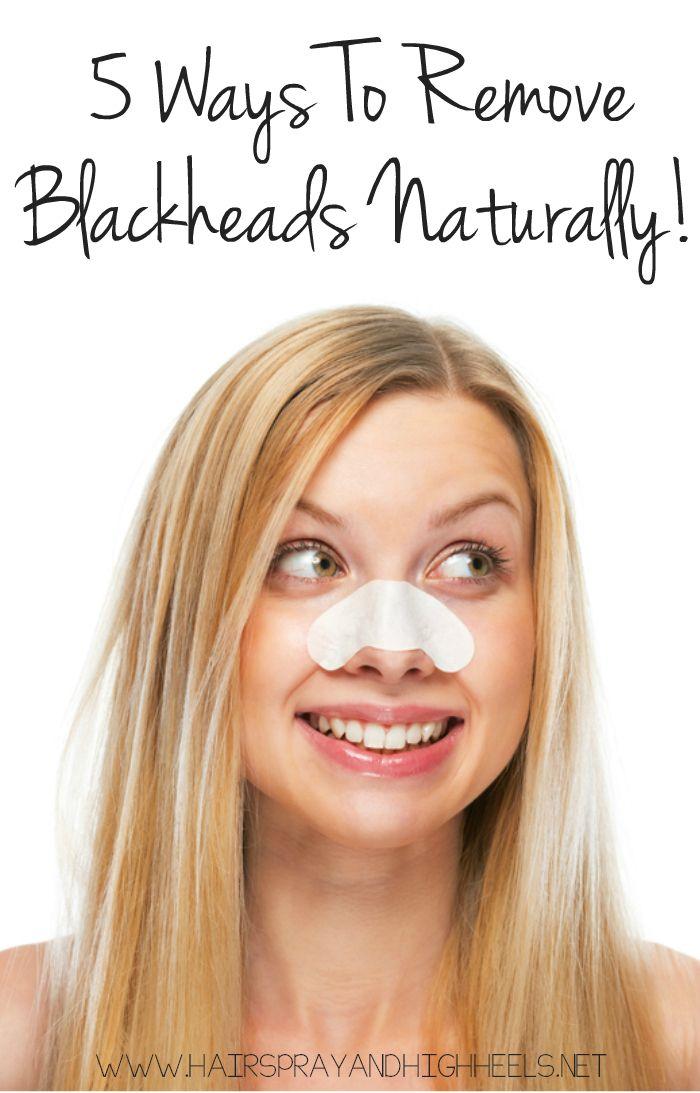 Get Rid Of Blackheads Naturally!  via www.hairsprayandhighheels.com