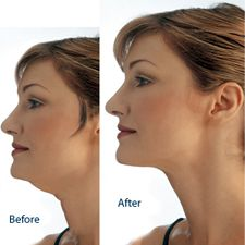 Chin Liposuction. Liposuction or Lipoplasty is commonly known as 'fat removal surgery'. Learn more about liposuction, the right clinic and surgeon for you at the Plastic Surgery Hub. http://www.plasticsurgeryhub.com.au/feature/liposuction-lipoplasty/ #PSHubcosmeticsurgery #PSHubplasticsurgery #PSHubsurgicalprocedures #LiposuctionProcedure #FatRemoval