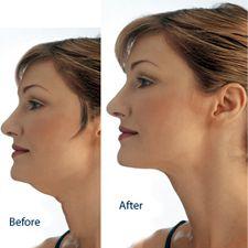 Chin Liposuction DONE!