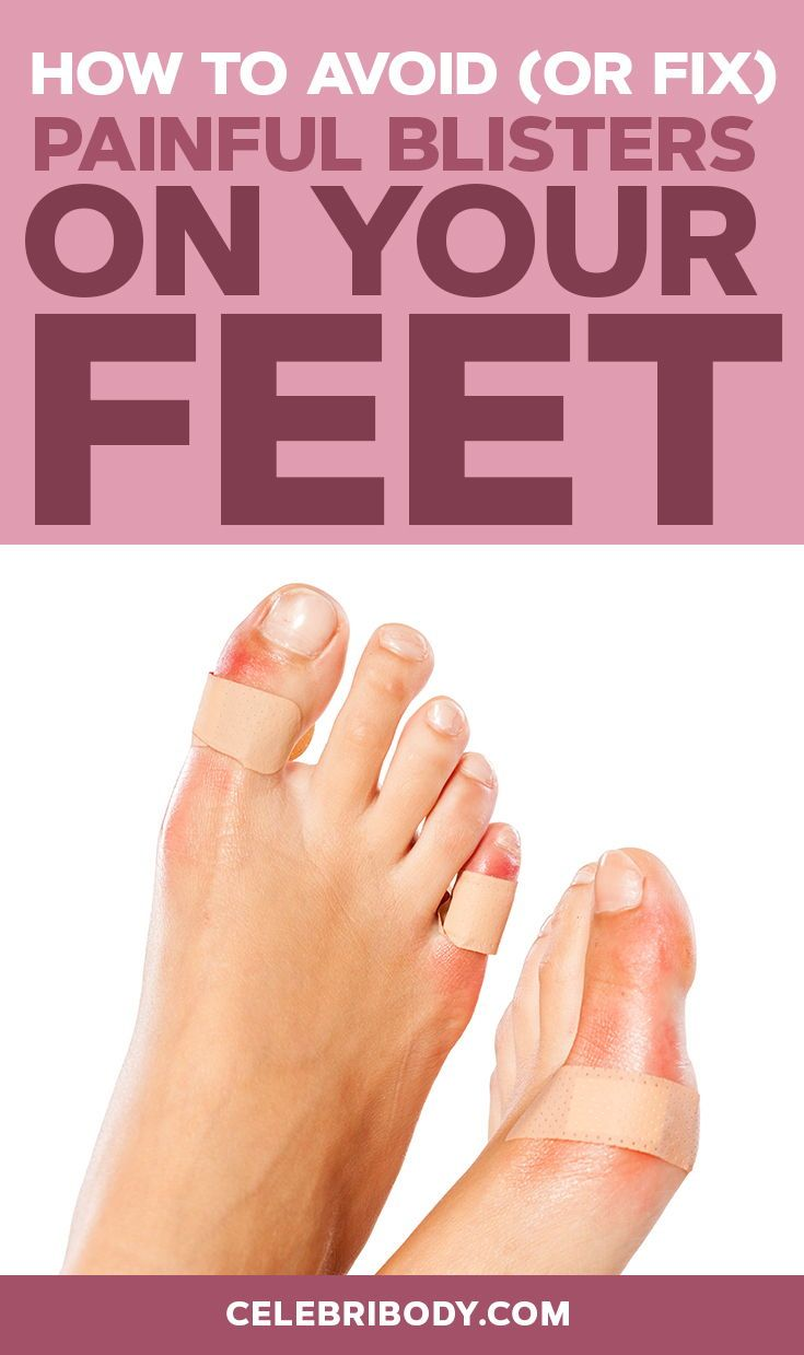 How To Get Rid Of Painful Blisters On Feet