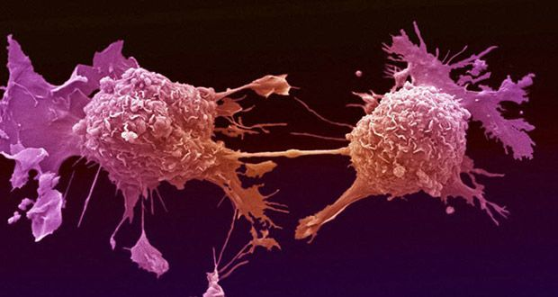 What are the most common types of #cancer? Read more ...