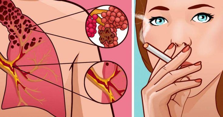 Une étrange maladie pulmonaire causée par la cigarette électronique