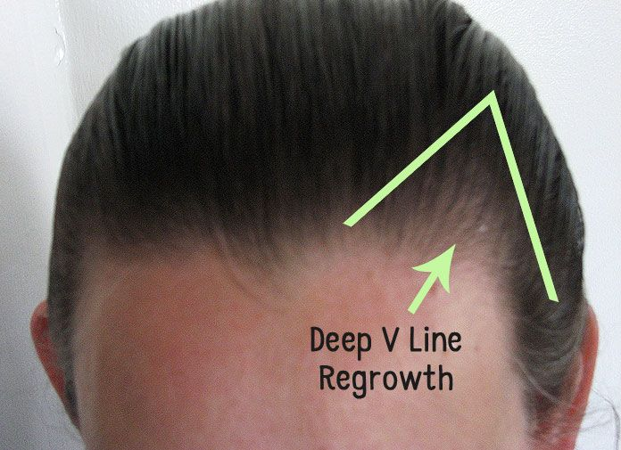 This Hair Loss Success Story Is From A Woman Who Reversed Her Receding Hairline Using A Simple Tool Hair Brush Help Hair Loss Regrow Hair Frontal Hair Loss