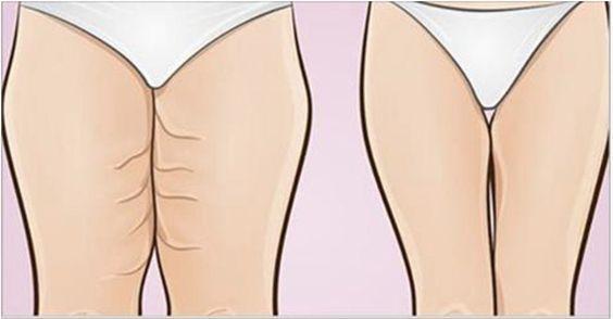 As mulheres adoram a ideia de ter pernas bem torneadas.Infelizmente, muitas seguem uma dieta balanceada, fazem exercícios regularmente, mas não conseguem obter o resultado desejado.Isso porque não é qualquer tipo de atividade que fortalece os músculos da coxa.