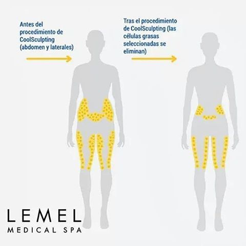 Reducción de grasa tras el procedimiento de lipoescultura sin cirugía de CoolScu...