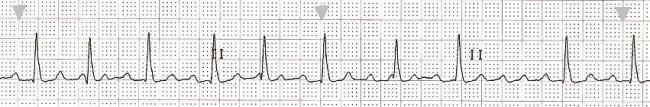 Basic ECG of the WEEK, October 10, 2013 __ Atrial Flutter With Variable Conduction | ECG Guru - Instructor Resources