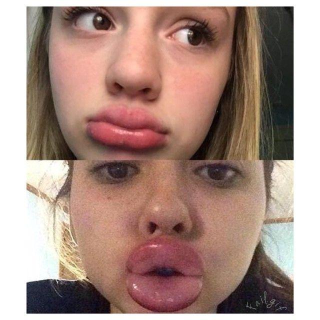 kylie jenner lip challenge fail copy 3