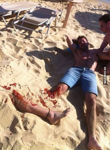 Somebody Call 911 I am so doing this next time I am at the beach