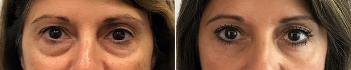"It's #TransformationTuesday! Eyelid surgery, Or ""blepharoplasty"", is perfect for correcting droopy or puffy eyes! What makes this procedure so great, is the excellent results, at an affordable price! This patient was able to achieve remarkable results. Look how beautiful she is!  Check out more here: https://contourderm.com/eyelid-surgery-blepharoplasty/?utm_content=buffer50b8c&utm_medium=social&utm_source=pinterest.com&utm_campaign=buffer  #Eyes #Blepharoplasty #Surgery #Results #Skin…"