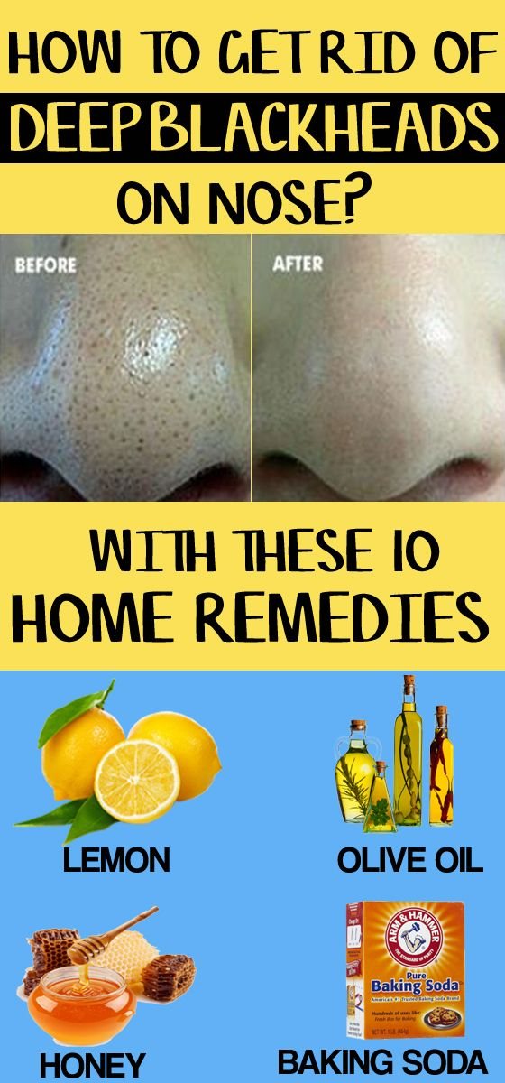 How to Get Rid of Deep Blackheads on Nose – 10 Home Remedies